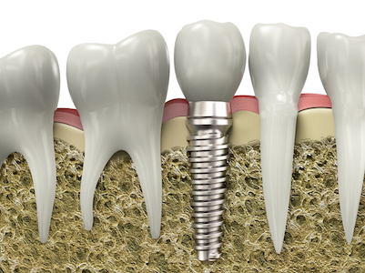 Image of how a restorative dentistry dental implants fit between natural teeth.